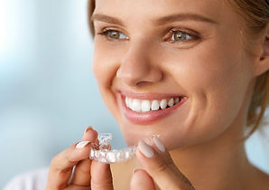 smilify-invisalign-for-teens.jpg
