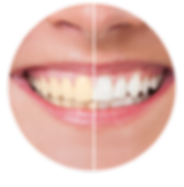 TEETH-WHITENING.png