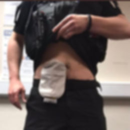 Police officer with ostomy bag