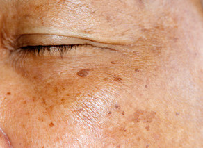 Коричневые пятна на коже (гиперпигментация)