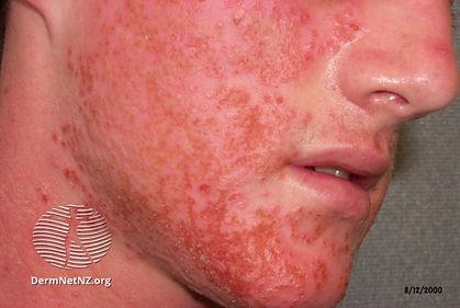 eczema-herpticum06.jpg