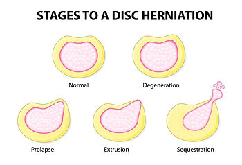 Disc herniation Ascot Vale Moonee Ponds