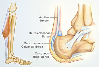 Achilles tendon injury Ascot Vale