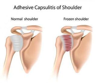 Frozen shoulder Ascot Vale