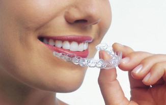Determine-If-Invisalign-Is-Right-Treatment.jpg