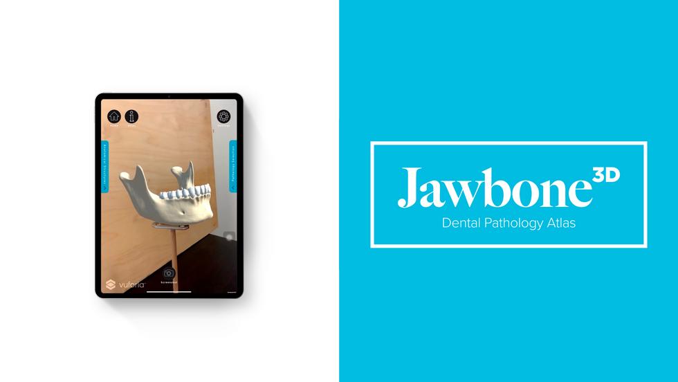 Jawbone3D: Dental Pathology Atlas · Atlas de pathologie dentaire