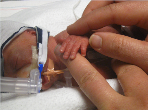 Donovan as a tiny baby with a breathing tube fixed to his mouth, his small hand wrapped around the fingers of one of his parents.