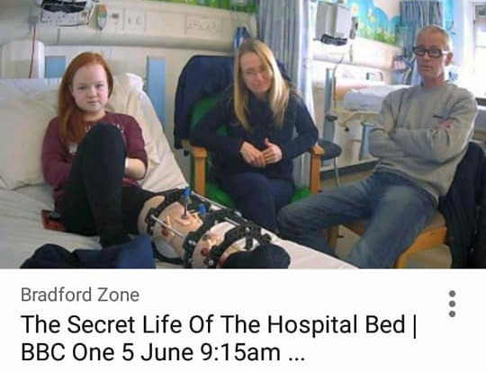 Anna lays in a hospital bed with her legs encased in a complex cast. Her mother and mother sit beside her, and they are all looking to the camera with neutral expressions.