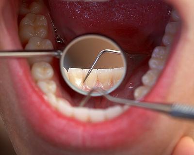 onderhoud en reiniging van tanden