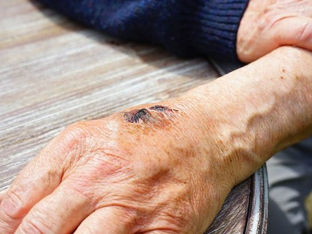 Are Chronic Wounds a Growing Problem?