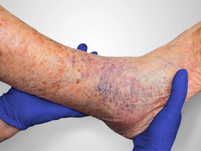 Reducing the Recurrence of Lower Extremity Wounds
