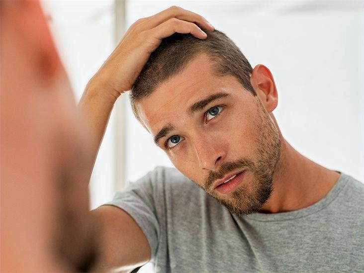 Man checking his thinning hair loss