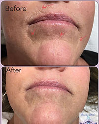 Fibroblasts Plasma Skin Tightening Treat