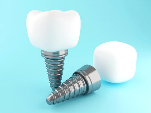 Quel type d'implant dentaire choisir ?