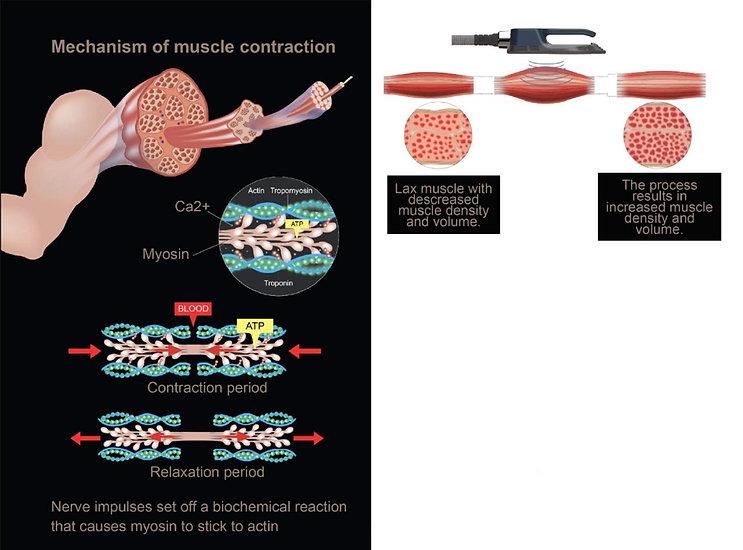 Muskel.jpg