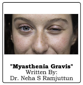 Article Myasthenia.jpg