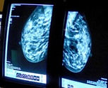 Breasts%20-%20cancer_edited.jpg