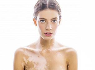 vitiligo-piel.jpg
