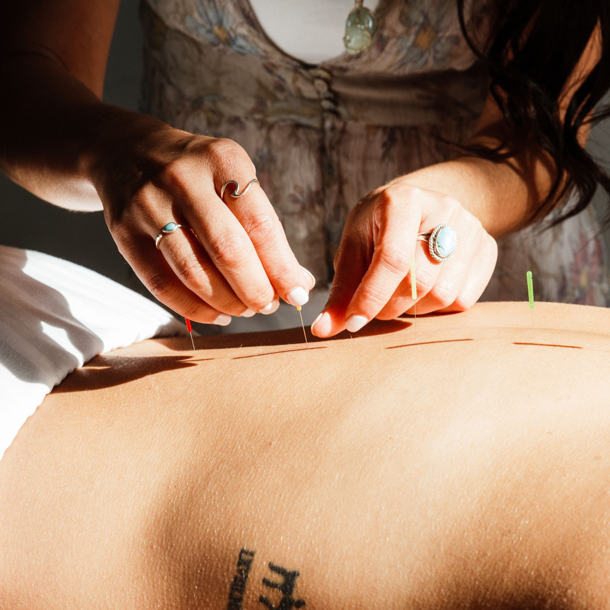 90 Min Acupuncture, Cupping, Bodywork