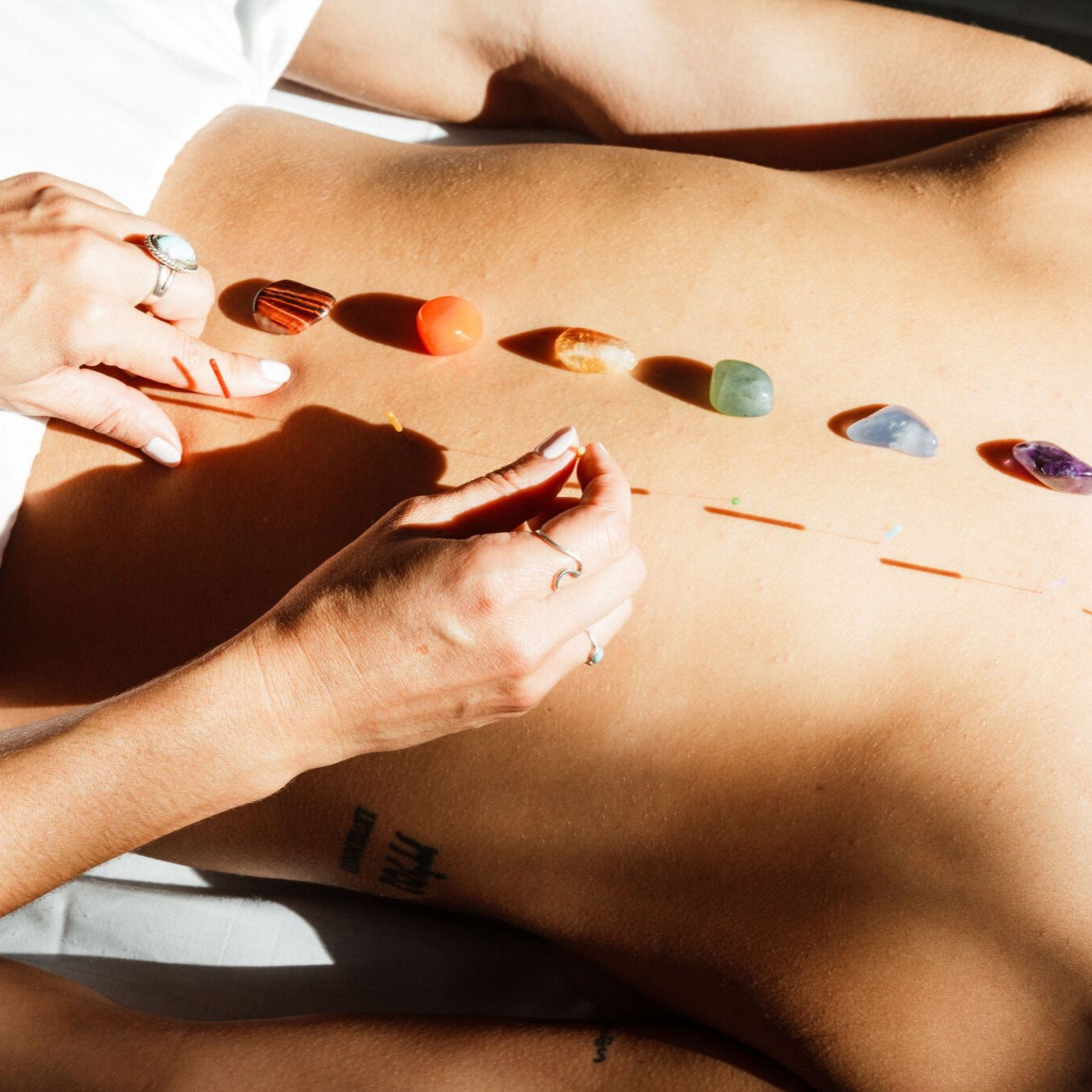 60 Min Acupuncture, Cupping, Bodywork
