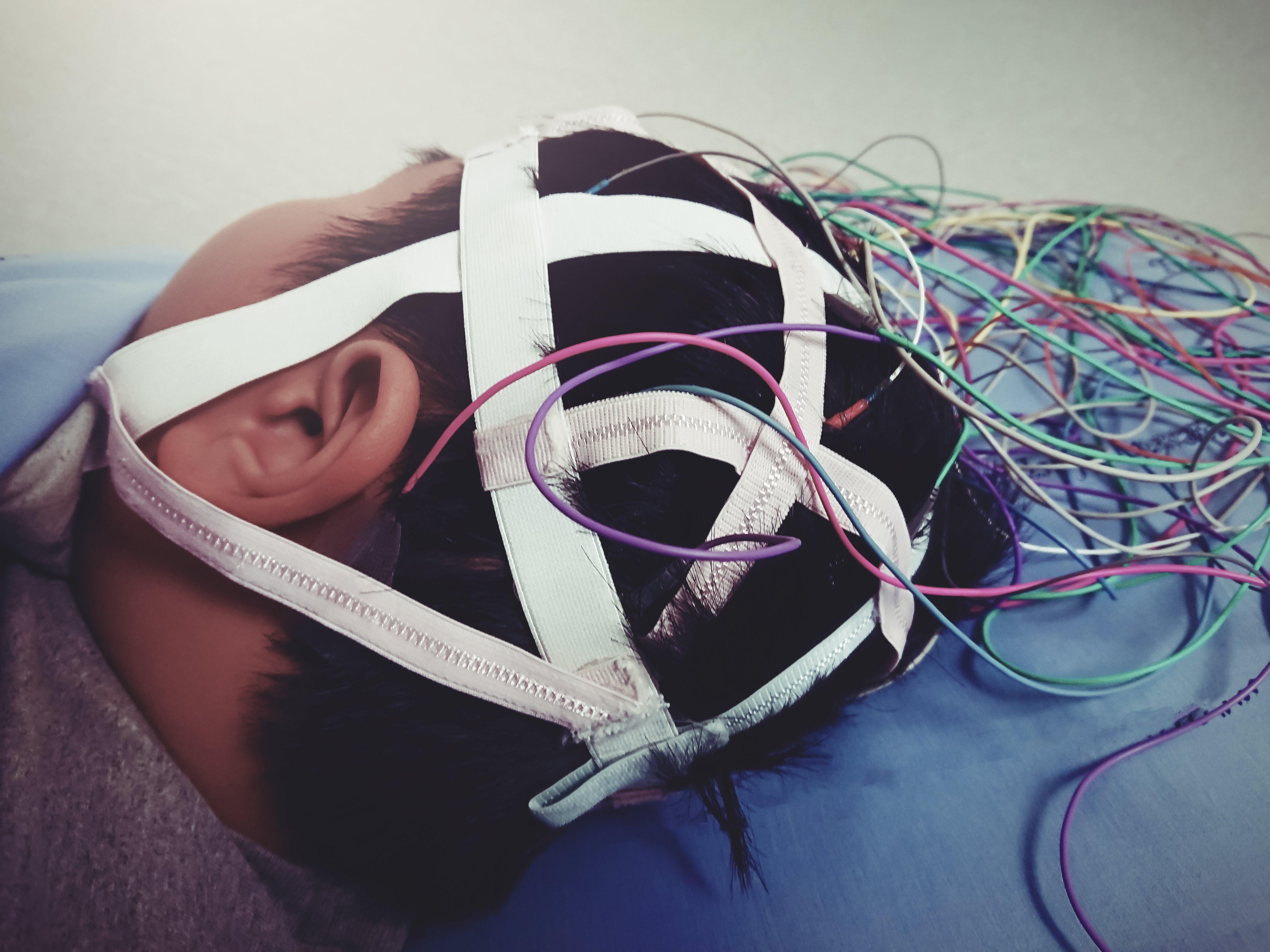Ped Neuro Pic 3