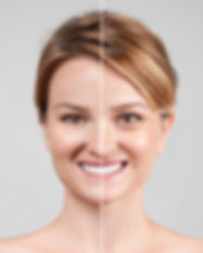 Concept of skin rejuvenation. Woman befo