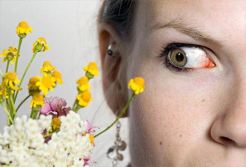 eye-allergies-1.jpg