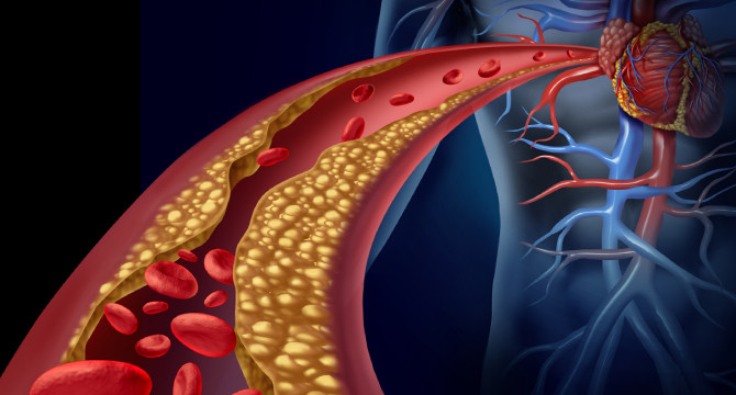 Generic graphic showing a body and close-up of  artery clogged with plaque.