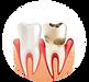 photo-parodontie-800x620 bis.png