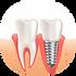 illustration-realiste-implant-dentaire-g