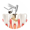 nettoyer-caries-au-foret-dentaire_81522-