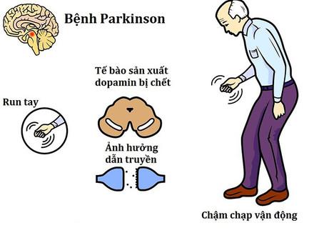 Yến Sào Điều Trị Parkinson? 🤔