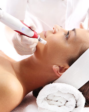 microneedling at De Hita Skin Care & Med Spa near Fall Creek Humble TX
