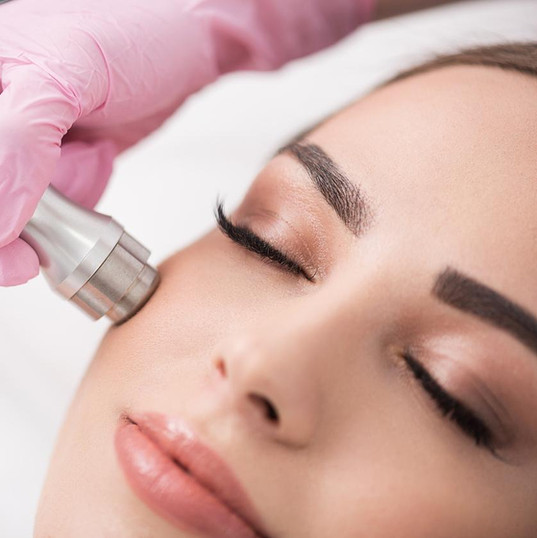 Microdermabrasion-Treatment.jpg