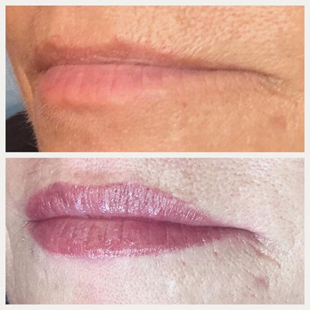 Lips are so popular at the moment!! Get