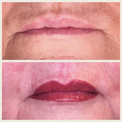 Full lip procedure on a wonderful lady!