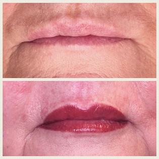 Full lip procedure on a wonderful lady!