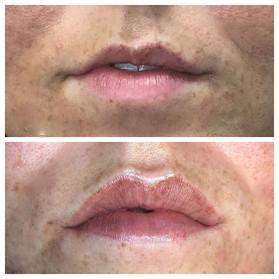 Subtle and soft lipblush procedure.jpe