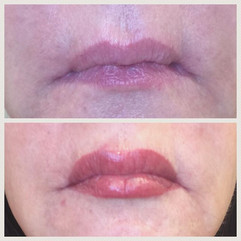Gorgeous full lip procedure #beforeandaf
