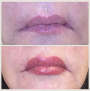 Gorgeous full lip procedure #beforeandaf