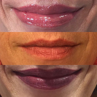 Full lip procedure, first image was afte