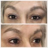 Full top and bottom eyeliner procedure.