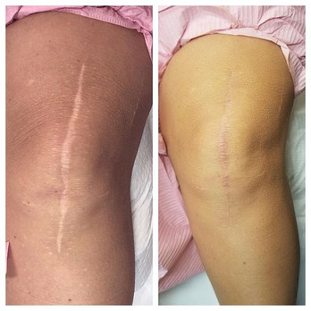 Scar revision first session on a favorit