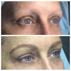 Before and after of a lovely client who