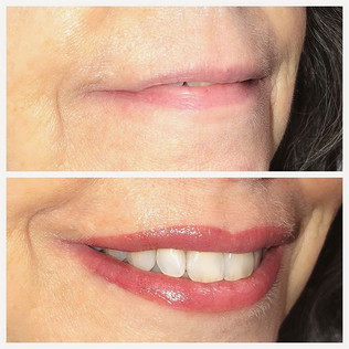 Lips lips lips!!! Love the transformatio