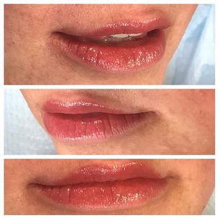 More angles of our lipblush for today!