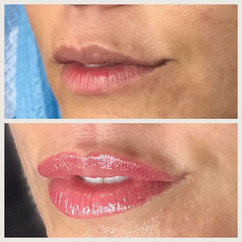 Closeup on the lips 👄 before and after