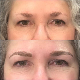 Lovely full brows done with Microfusion.