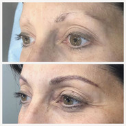 An amazing before and after. Microblading and powder shading