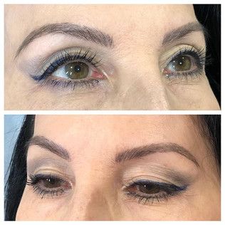 _HEALED microfusion brows.  She has natu